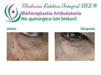 Blefaroplastia-627211