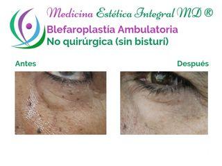 Blefaroplastía Ambulatoria - No quirúrgica (sin bisturí)