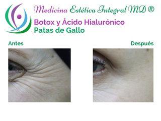 Patas de gallo - Botox y Ácido Hialurónico