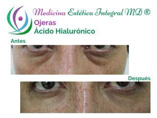 Ojeras con ácido hialurónico