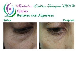 Tratamiento de ojeras - 628808