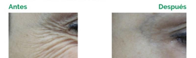 Botox - patas de gallo