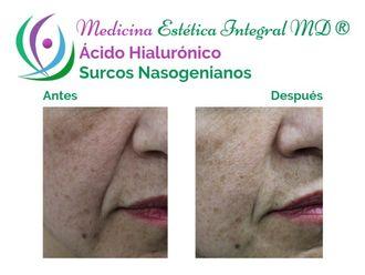 Ácido hialurónico - 628810