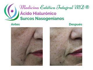 Ácido hialurónico - Surcos nasogenianos