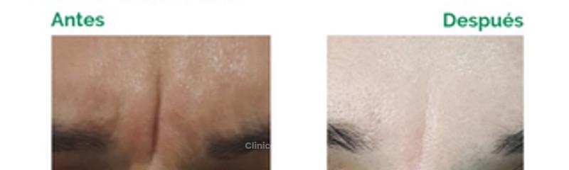 Botox - Entrecejo