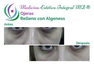 Tratamiento de ojeras - 628812