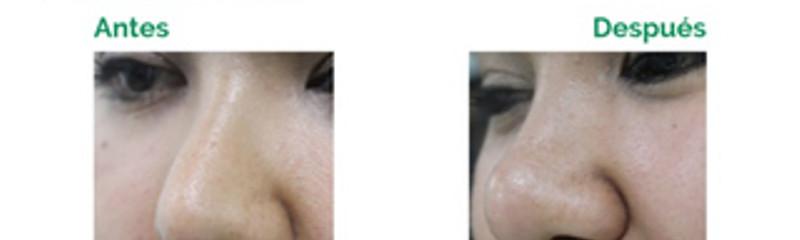 Rinomodelación con Ellansé - 1 hasta 4 años de duración