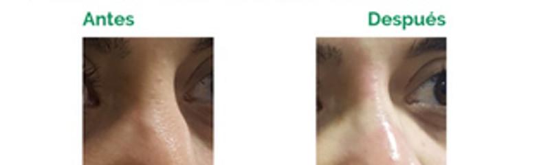 Rinomodelación con Ellansé - Corrección del dorso nasal