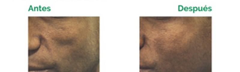 Pómulos y Mejillas - Relleno con Algeness