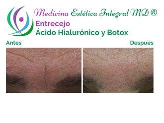 Rejuvenecimiento facial - 628827