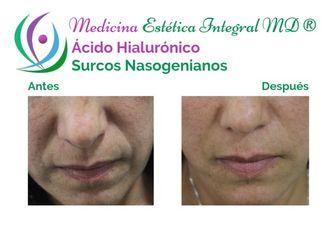 Ácido hialurónico - 628866
