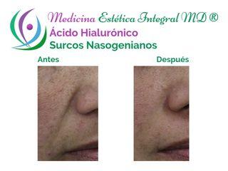 Surcos Nasogenianos - Ácido Hialurónico