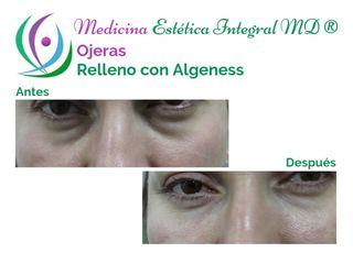 Relleno de Ojeras - Algeness