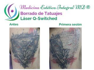 Borrado de Tatuajes - Láser Q-Switched o Radiofrecuencia dermablativa