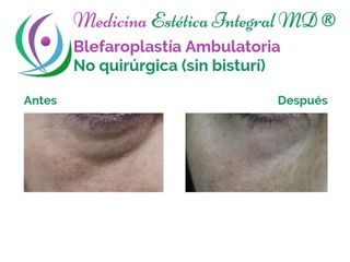 Blefaroplastía Ambulatoria - Mínimamente Invasiva