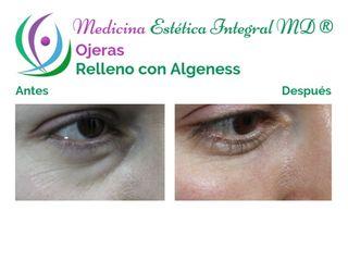 Ojeras - Relleno con Algeness