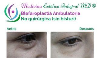 Blefaroplastia - 629482