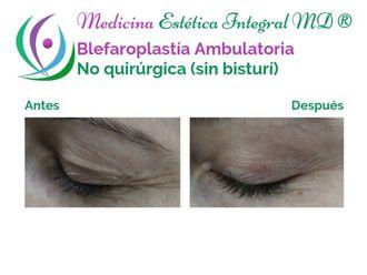 Blefaroplastia - 629686