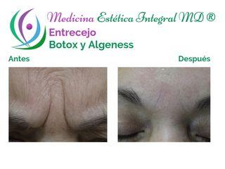 Entrecejo - Botox y Algeness