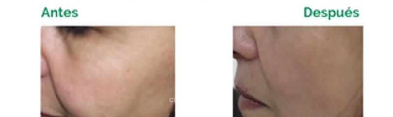 Hilos tensores Silhouette - Lifting Sin Cirugía