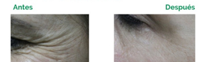 Patas de Gallo - Botox y Algeness