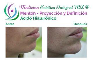 Mentón - Proyección y Definición con Ácido Hialurónico