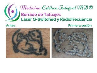Tatuajes - Borrado con láser Q-Switched y radiofrecuencia dermablativa