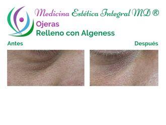 Tratamiento de ojeras - 630436