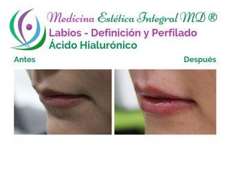 Aumento de labios - 631042
