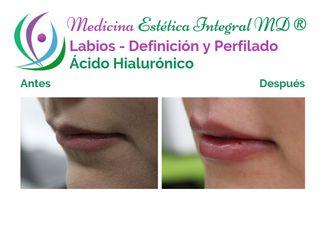 Labios - Ácido Hialurónico