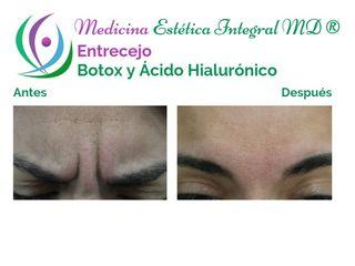 Entrecejo y Frente - Botox y Ácido Hialurónico
