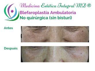 Blefaroplastia - 632233