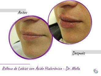 Aumento de labios - 640478