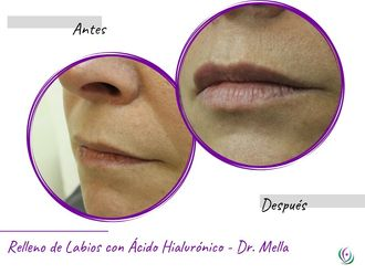 Aumento de labios - 641101