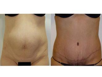 Abdominoplastia - 633747