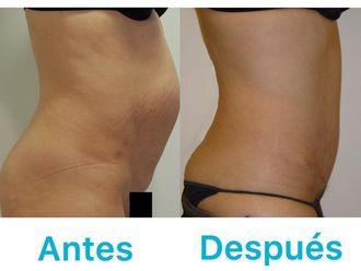 Abdominoplastia - 633748