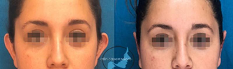 Otoplastia - Cirugía de orejas prominentes