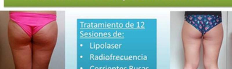Tratamiento reductivo + reafirmante