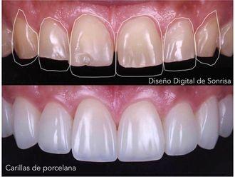 Implantes dentales - 738759