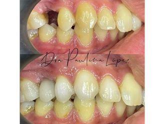Implantes dentales-790240