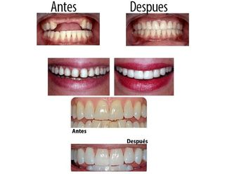 Implantes dentales - 575357