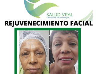 Rejuvenecimiento facial-663868