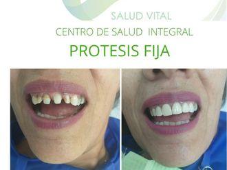 Implantes dentales-663869