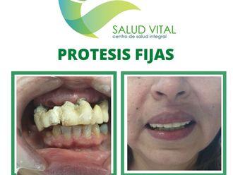 Prótesis dentales-701274