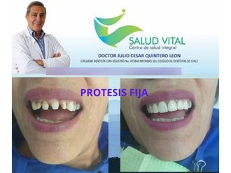 Implantes dentales-701278