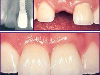 Implantes dentales-281733