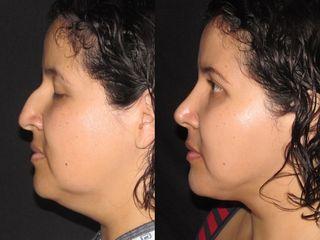 Rinoplastia Dr Rafael Pinto Cirugia Plastica