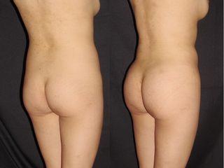 Dr Rafael Pinto Lipoescultura Brazilian Butt lift, aumento glúteo con grasa, liposucción, fat transf