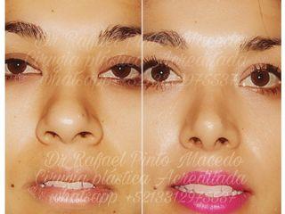 Rinoplastia, estetica nasal, perfiloplastia, afinamiento lineas esteticas