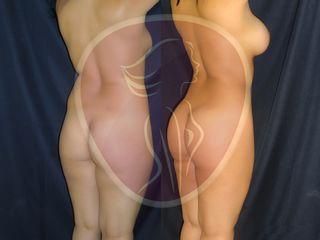 Liposuccion, lipoescultura, aumento gluteo, gluteoplastia,aumento mamario, dr rafael pinto